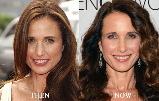 Andie MacDowell Celebrity Plastic Surgery