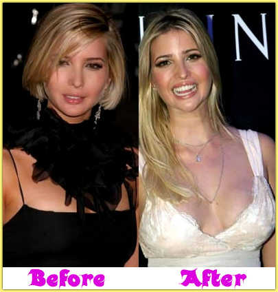 Ivanka Trump Breast Implant