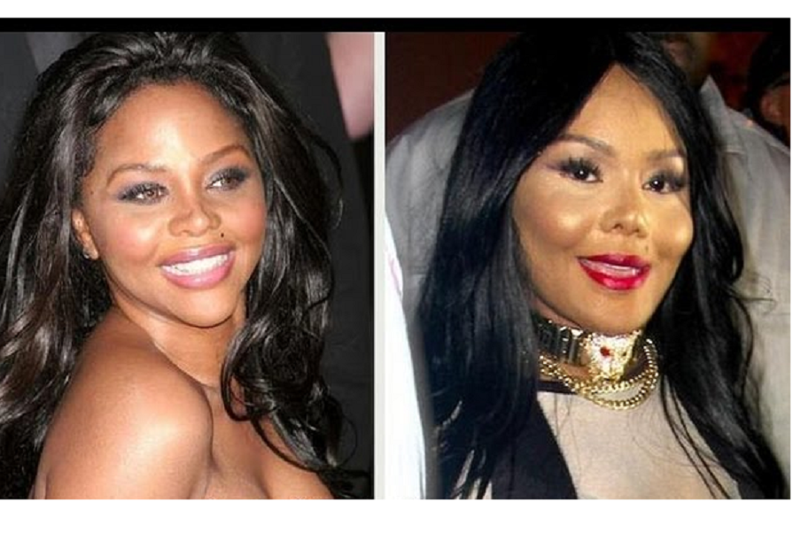 before Lil surgery kim