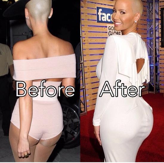 Amber Rose Butt implant