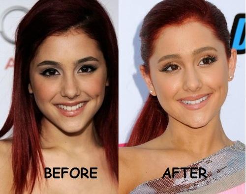 Ariana Grande Nose Job