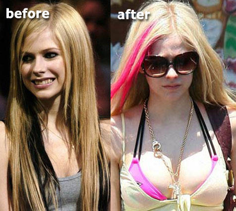 Avril Lavigne Boob Job