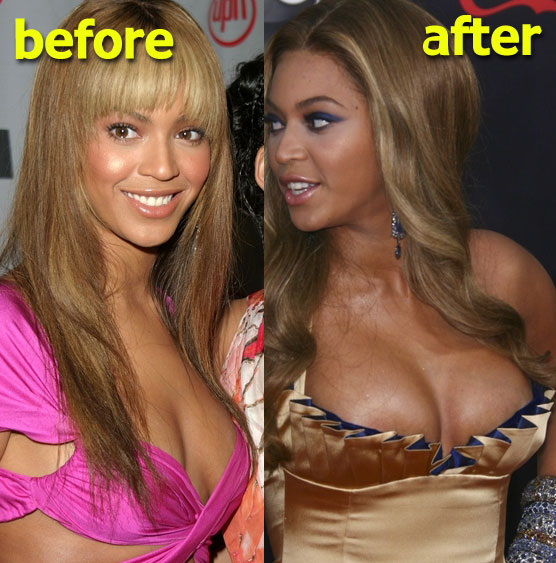 Beyonce Breast Implant