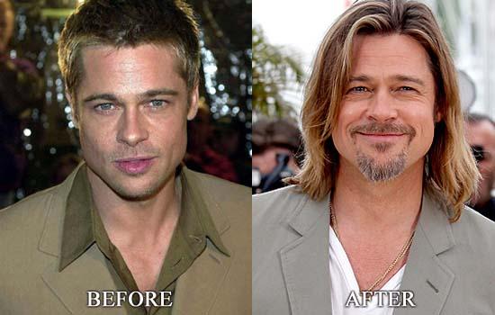 Brad Pitt Plastic Surgery