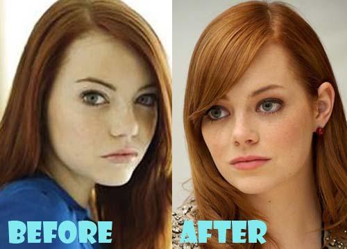 Emma Stone Nose job