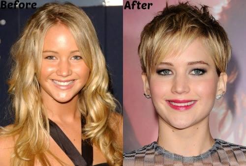 Jennifer Lawrence Nose Job