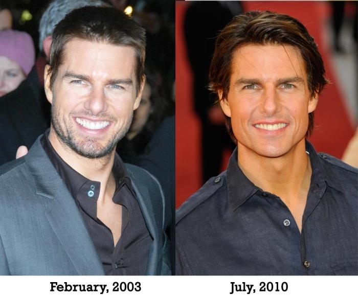 Tom Cruise Facelift