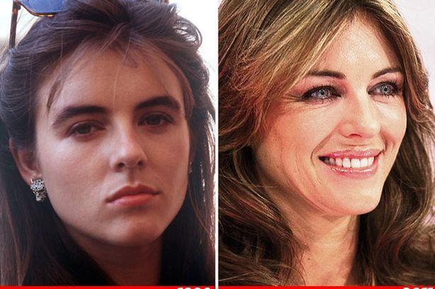 Elizabeth Hurley Botox Surgery Celebrity Bra Size Body