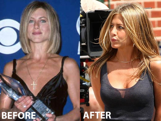 Jennifer Aniston Boob Job