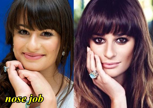 Lea Michelle Nose Job