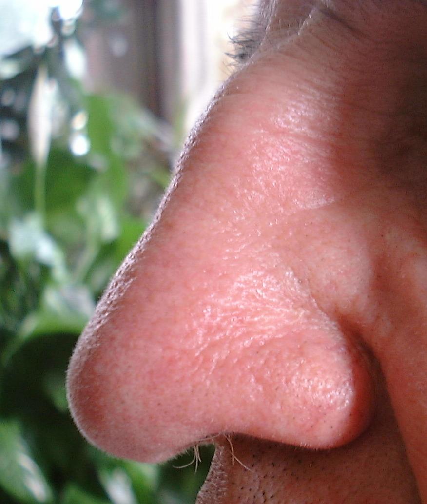 Odd Nasal