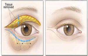 Brief Blepharoplasty