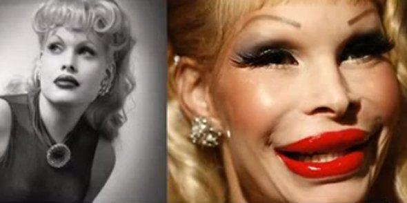 Botox Hollywood Celebrities