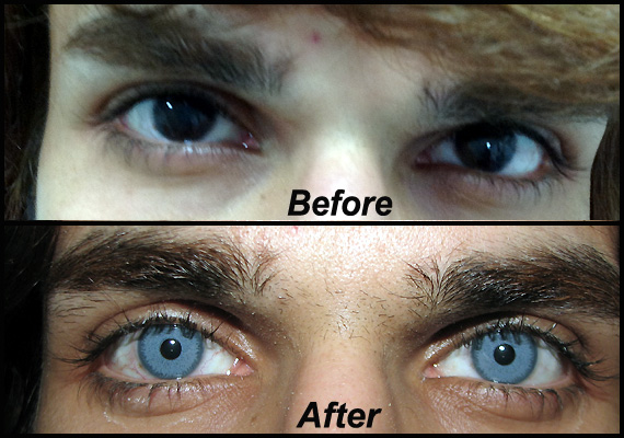 Plastic Surgery To Change The Eye Color
