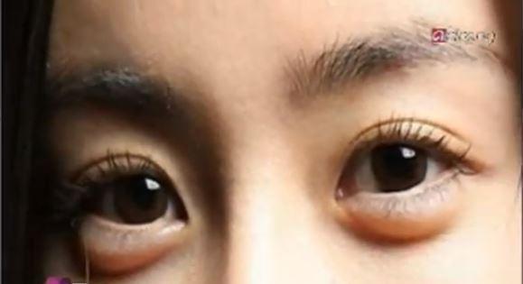 Baggy Eyes Surgery