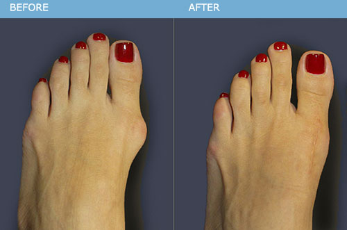 Bunions Treatment Without Surgery