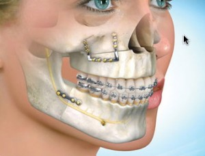 Jaw Surgery Procedure