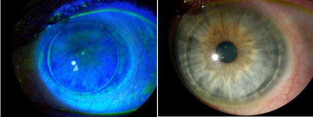Lasik Eye Risk