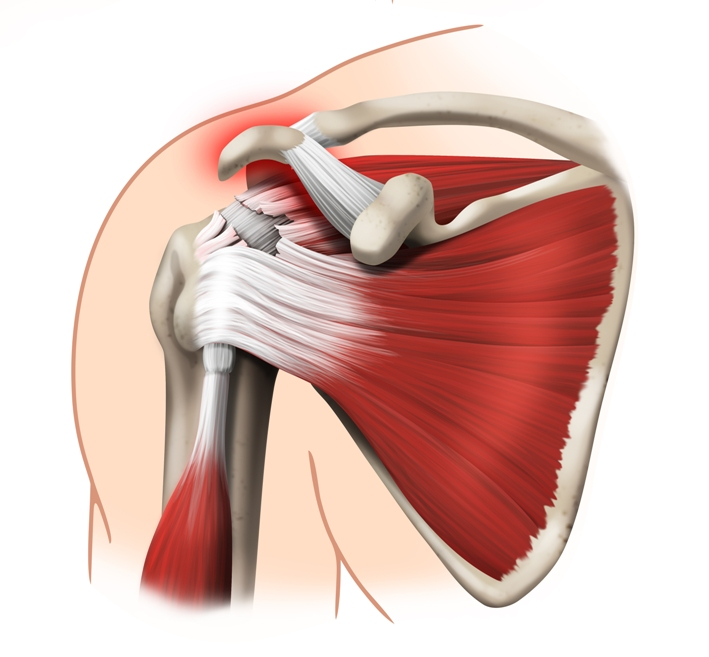Information Torn Rotator Cuff Treatment without Surgery ...