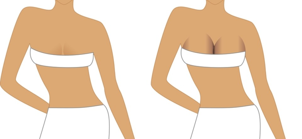 Affects Of Breast Augmentation Surgery 38
