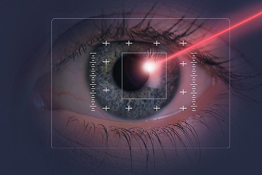 Lasik Eye Procedure
