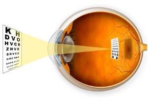 Minus Eyes Disorder