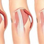 Buttock Surgery Procedure