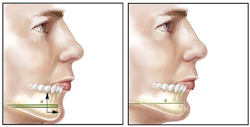 Chin Surgery Procedure