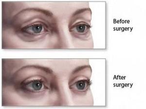 Eye Bag Surgery Procedure