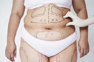 Liposuction Surgery Benefit