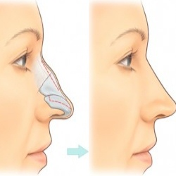 Rhinoplasty Surgery Risk