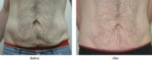 Shaggy Skin Plastic Surgery Procedure